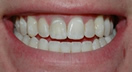 Order Orthodontic treatments