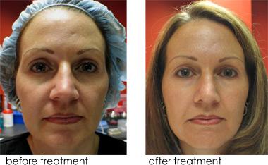 Order Pixel Laser Skin Resurfacing