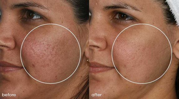 Mosaic™ Laser Resurfacing